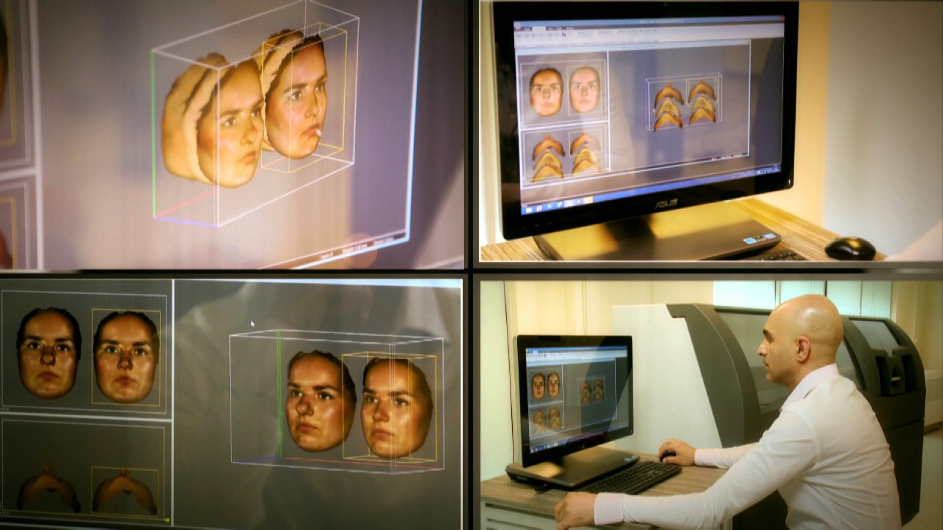 3d mask rinoplasti teknolojisi
